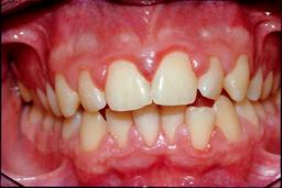 Ontstoken tandvlees