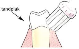 slijtage van het gebit