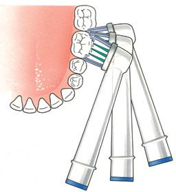 volg-de-vorm-van-uw-tanden